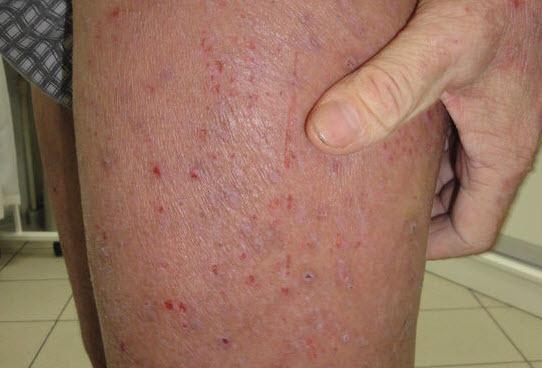 Шершавая кожа на бедрах у взрослых и детей: причины, постановка диагноза и лечение