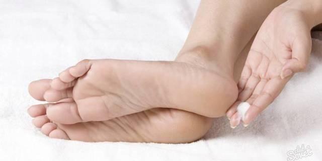Как вывести и убрать сухой мозоль на пальце ноги: как и чем лечить