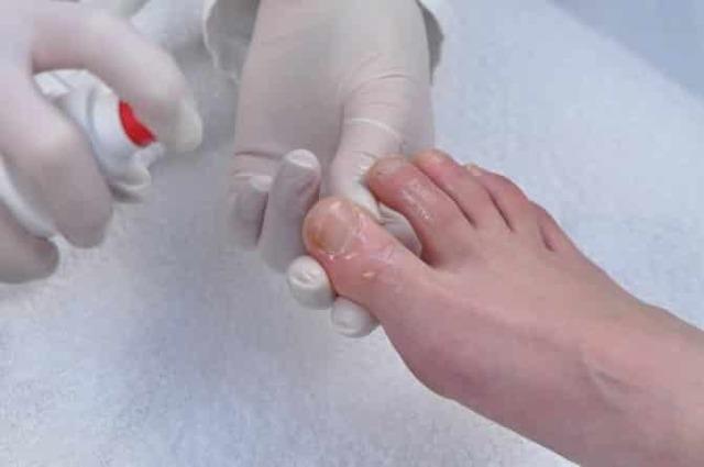 Как называется врач по ногтям на ногах