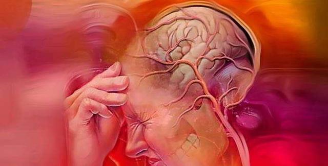 Как укрепить сосуды головного мозга