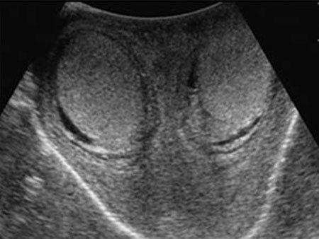 УЗИ мошонки или яичек у мужчин: как делают с допплером, подготовка и что показывает