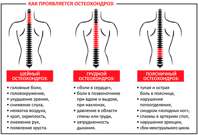Что такое блокада позвоночника при остеохондрозе: новокаиновая, лидокаиновая