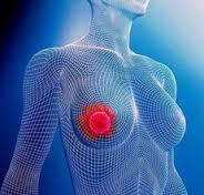 Рак груди 4 стадии: симптомы, прогнозы, продолжительность жизни и лечение
