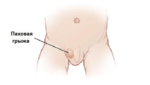Уплотнение на яичке у мужчин: симптомы, лечение и профилактика