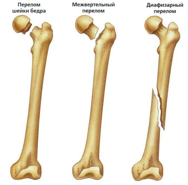 Бедренная кость: анатомия, строение, где находится, фото