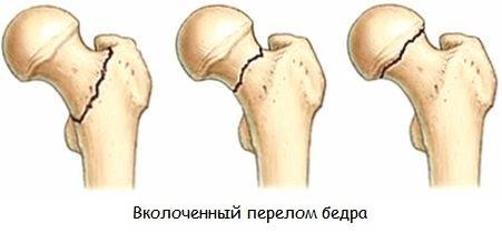 Вколоченный перелом шейки бедра у пожилых людей: причины, симптомы, лечение, реабилитация и прогноз