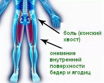 Синдром конского хвоста, его причины и лечение