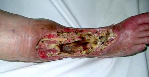 Флегмона бедра: причины, симптомы, методы лечения, профилактика и фото