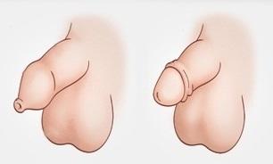 Фимоз у мальчиков: что такое физиологический фимоз у мужчин и детей, лечение