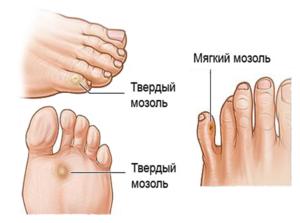 Как избавиться от мягкой и сухой мозоли между пальцами ног: лечение