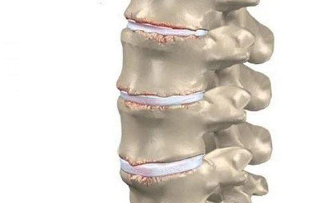 Спондилоартроз шейного отдела: что это такое, симптомы, лечение народными средствами и медикаментами, спондилография