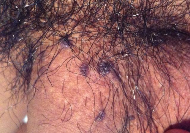 Черные точки на половом члене или на головке пениса: причины, виды и лечение
