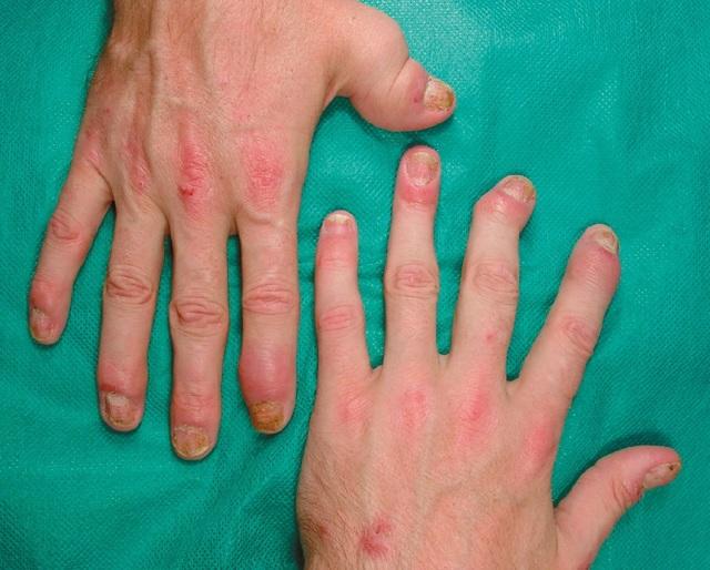Как избавиться от наростов на пальцах ног