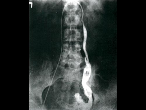 Методы диагностики патологий вен малого таза: флебография, УЗДГ, УЗИ, артериография