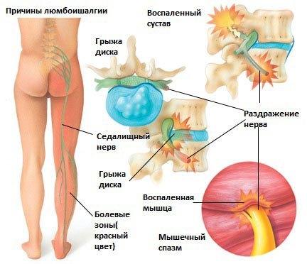 Люмбоишиалгия: симптомы, диагностика, методы терапии и лечение в домашних условиях