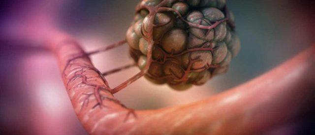 Метастазы в брюшной полости: симптомы, лечение, прогноз и отзывы