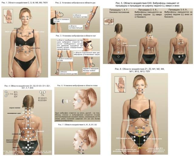 Лечение тазобедренного сустава Витафоном : преимущества, противопоказания, механизм действия и правила применения