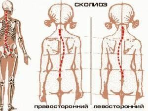 Лечение сколиоза 2 степени у подростков и детей: ЛФК, комплекс упражнений, гимнастика