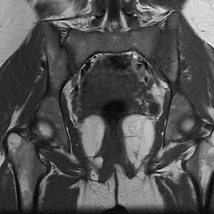 МРТ крестцово- подвздошных сочленений: подготовка к процедуре, что показывает, цена и фото