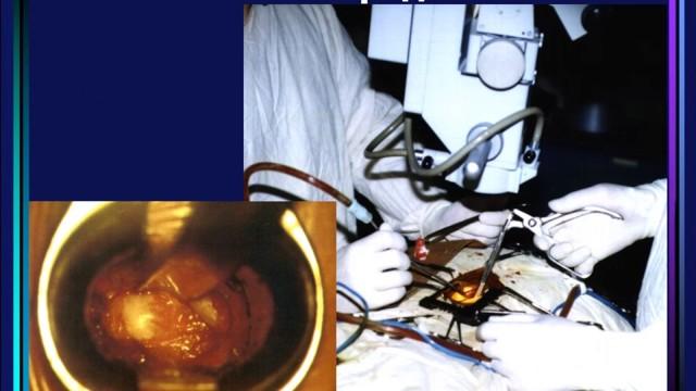 Что такое микродискэктомия: ход операции, отзывы, цена, реабилитация, боли, последствия и рецедивы
