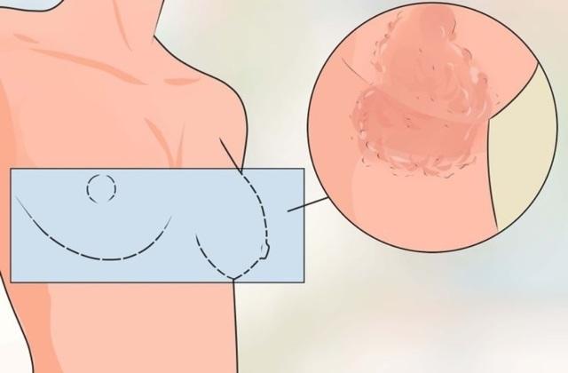 Причины покраснения на грудине у женщины, между грудными железами, около или вокруг сосков