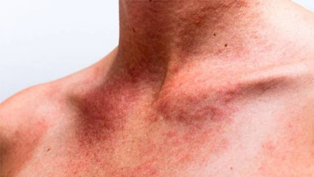 Аллергия на Солнце: симптомы, лечение, профилактика