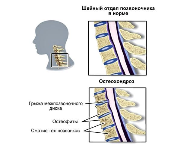Симптомы нарушения зрения при шейном остеохондрозе: двоение в глазах (диплопия), боли, молнии и вспышки, анизокория