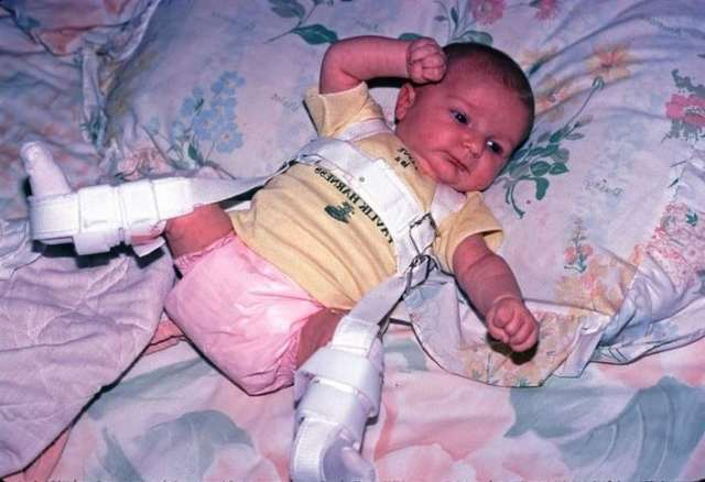 Врожденный вывих и подвывих бедра у детей: причины, симптомы, диагностика, лечение и последствия у взрослых