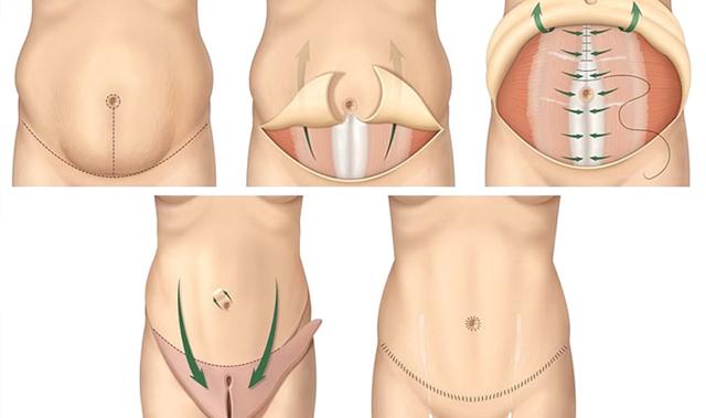 Как определить диастаз прямых мышц живота: симптомы и диагностика