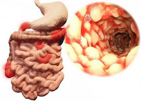 Илеит кишечника: симптомы и эффективные методы лечения