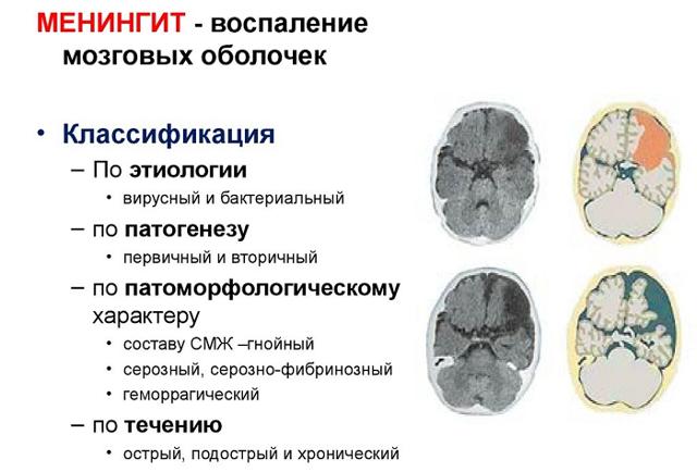 Первые признаки менингита у взрослых: лечение и профилактика