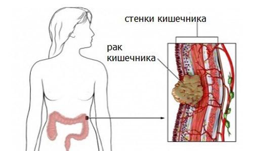 Лечение рака прямой кишки народными средствами