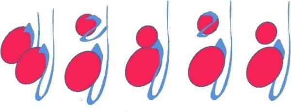 Третье яичко у мужчины: признаки, причины возникновения и последствия