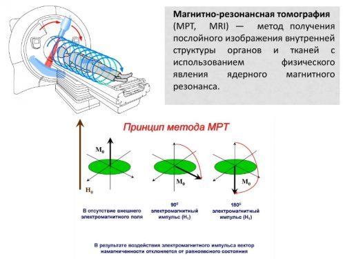 МРТ и КТ копчика: подготовка, что показывает, цена и фото