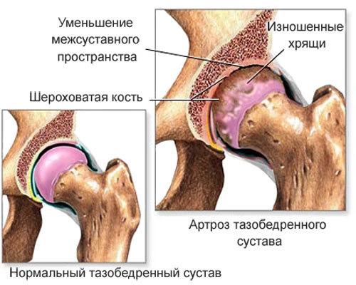 Гематома на бедре у женщин: причины, лечение, осложнения и фото