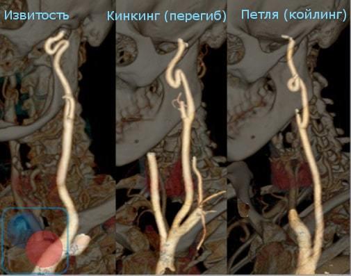 Патологическая извитость сонных артерий: симптомы и лечение, причины возникновения искривления