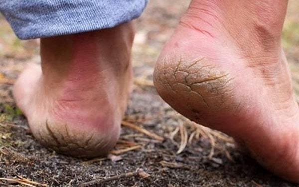 Как лечить трещины на пятках: причины и лечение