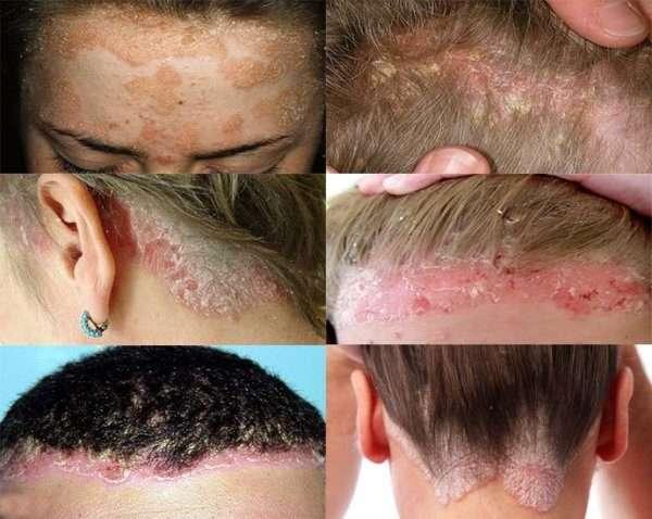Белый налет на голове у взрослого: возможные причины появления, как избавиться