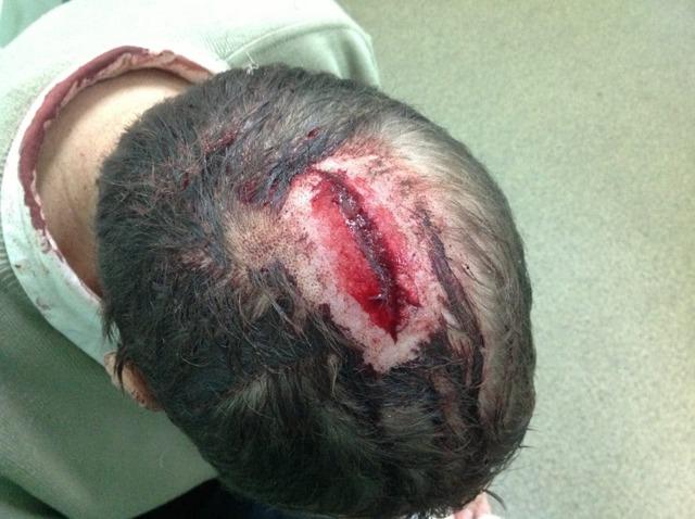 Рассечение головы: нужно ли зашивать рану, чем ее обработать, первая помощь и лечение в домашних условиях