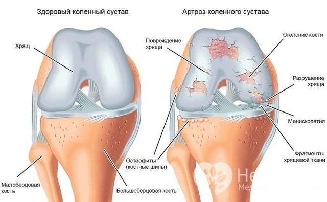 Полиостеоартроз коленных суставов: причины, симптомы, диагностика и лечение