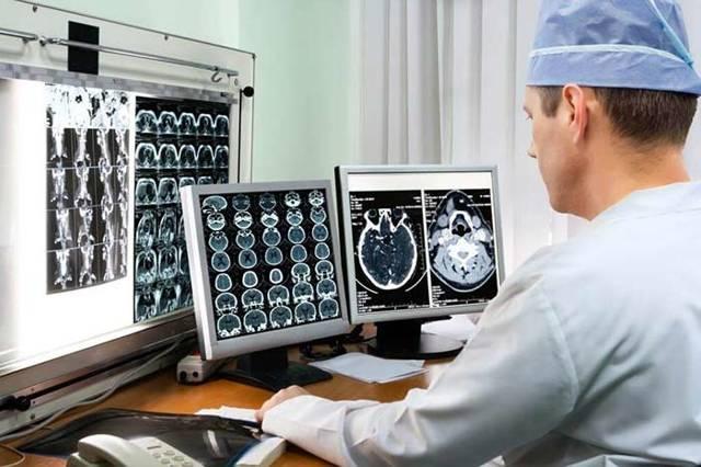 Рак головы: симптомы онкологии на ранней стадии у женщин, особенности лечения