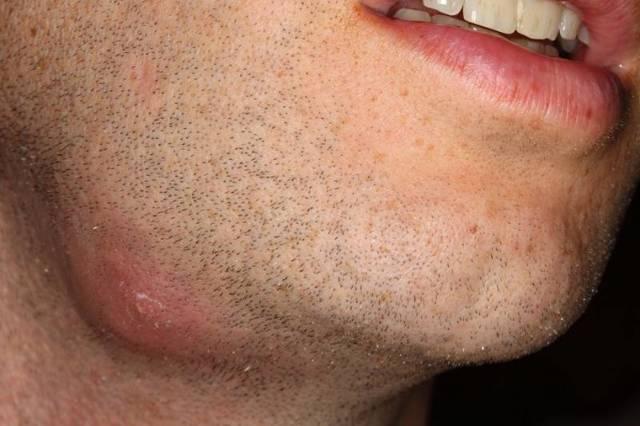 Абсцесс мягких тканей голени: код по МКБ-10, симптомы и лечение