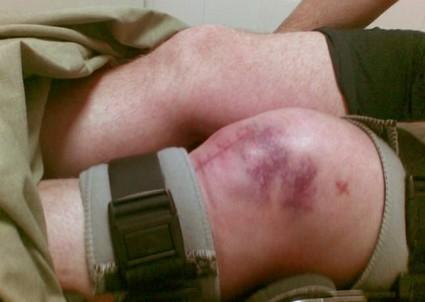 Травмы и повреждения коленного сустава: коды по МКБ-10, симптомы и лечение