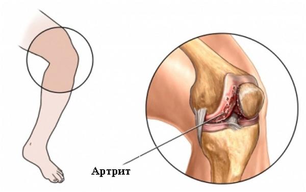 Тянущая боль в коленном суставе при движении: симптомы, причины и лечение
