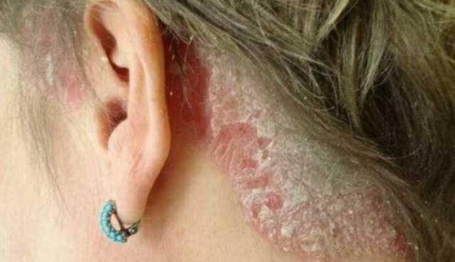 Сильно чешется голова и выпадают волосы: причины и лечение зуда
