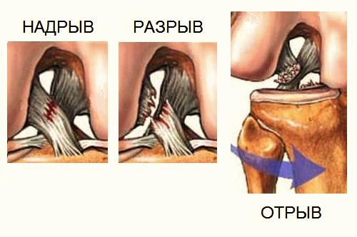Растяжение связок коленного сустава: симптомы, сроки лечения и восстановления