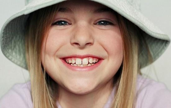 Челюсть ребенка с молочными зубами