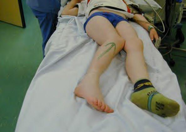 Варусная деформация голеней у детей: лечение, код по МКБ-10, фото, массаж