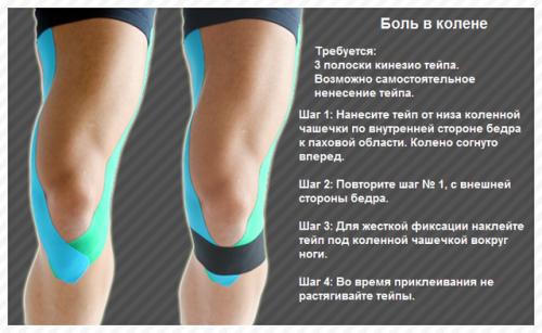 Тейпирование колена: как правильно наложить кинезио тейп при травмах чашечки и связок