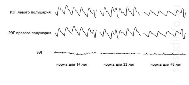 РЭГ головы: что это такое, что показывает обследование у взрослого и ребенка, расшифровка реоэнцефалографии